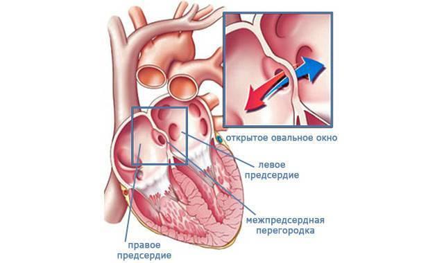 Открытое овальное окно в сердце у ребенка и у новорожденного: симптомы, причины и лечение