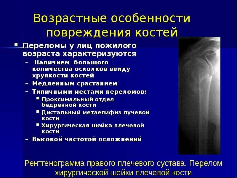 Что такое перелом? типы и признаки перелома.