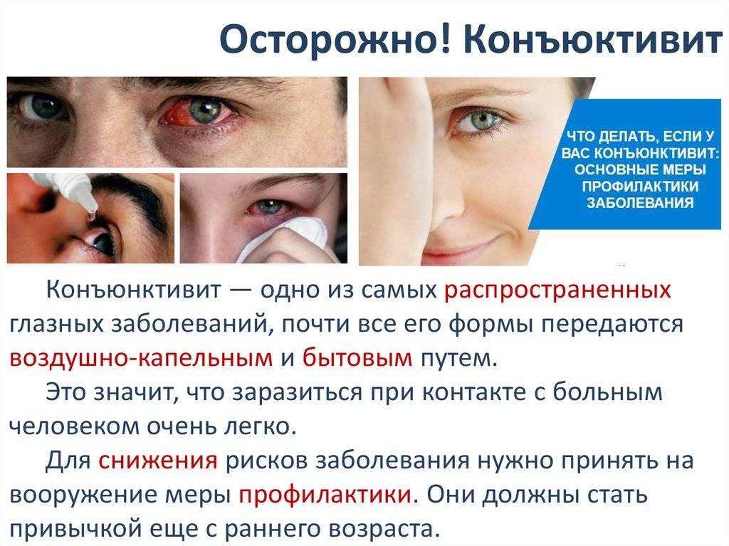 Вирусный конъюнктивит глаз: лечение у детей - энциклопедия ochkov.net