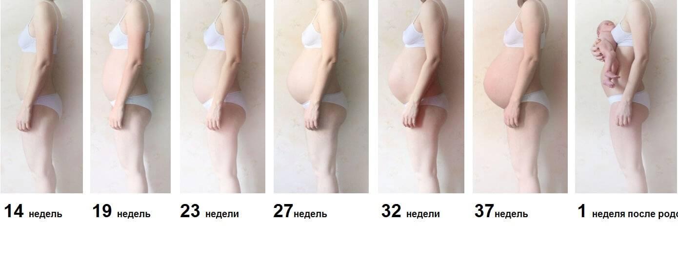 Чем опасен тонус матки при беременности и как убрать его в домашних условиях: рассказывает врач гинеколог