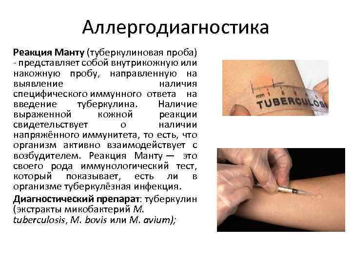 Анализ крови ребенку на туберкулез или лучше манту?