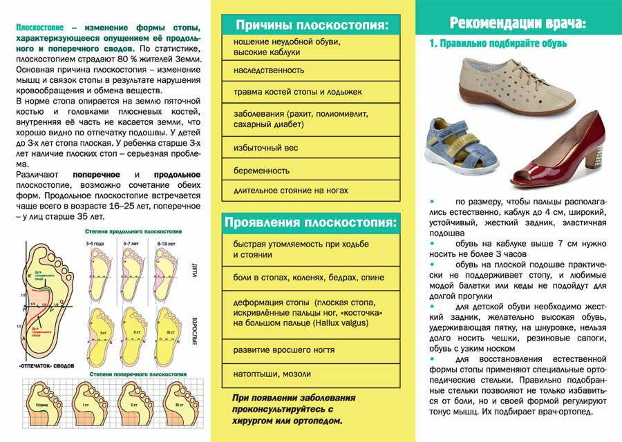 Виды и степени плоскостопия: лечение и профилактика. берут ли в армию с плоскостопием?
