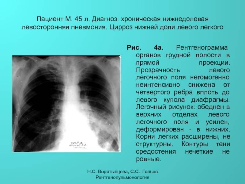 Лечение пневмонии у детей: как и чем бороться с болезнью эффективнее?