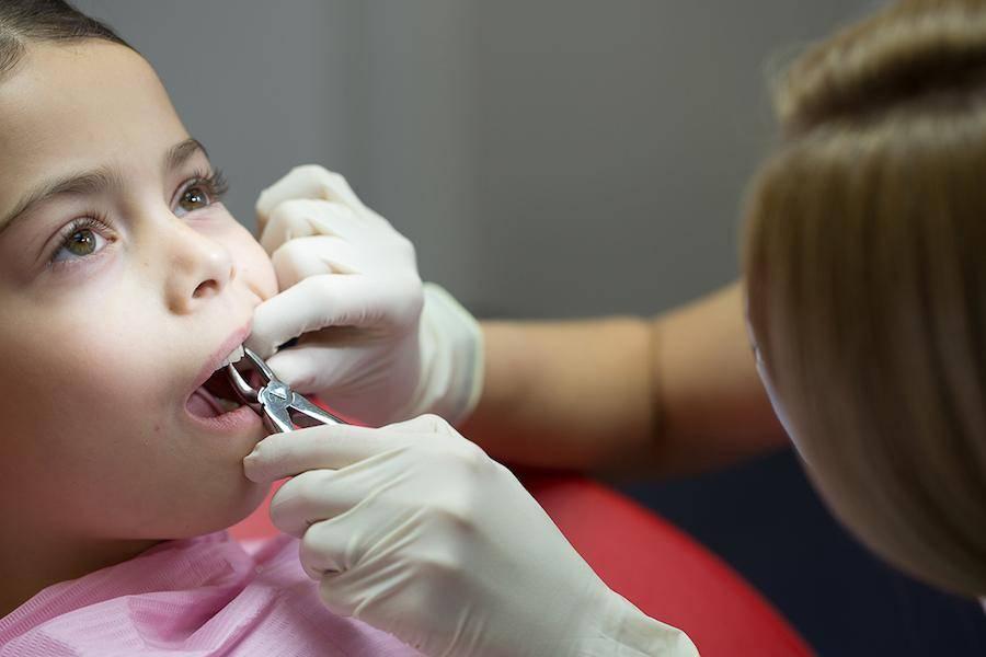 Удаление молочного зуба у детей - как удаляют и не опасно ли это