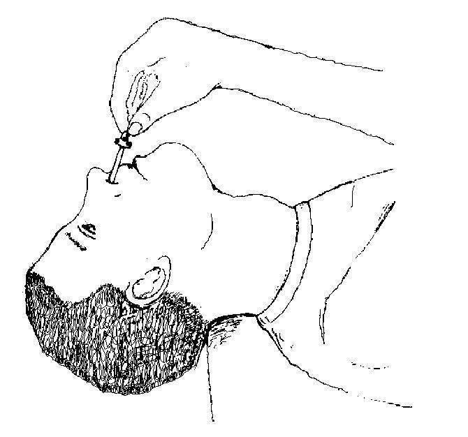 Как закапать капли ребенку в глаза, нос или уши: алгоритм, что делать, если он не дается