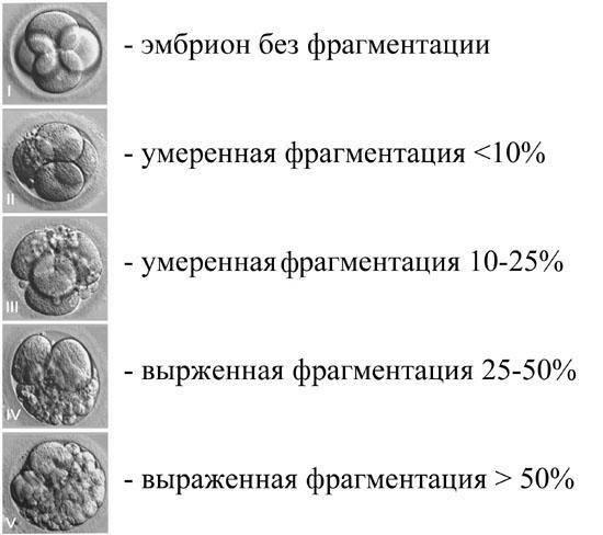 Подсадка (перенос) эмбрионов при эко >>> эмбриотрансфер