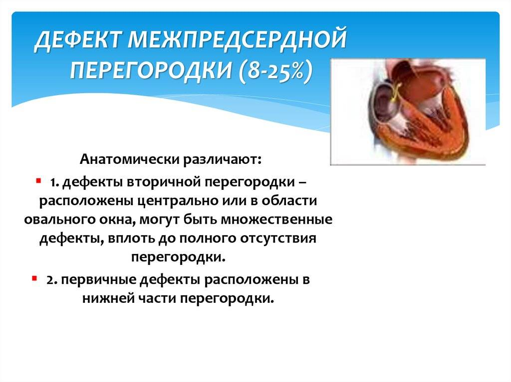 Госпиталь им. н.н. бурденко. эндоваскулярная операция — закрытие дефекта межпредсердной пререгородки дмпп окклюдером | госпиталь им. н.н. бурденко — центр сердечно-сосудистой хирургии | высокий профессионализм. передовые методы