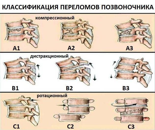 Компрессионный перелом, симптомы и лечение компрессионных переломов позвоночника в клинике цэлт.