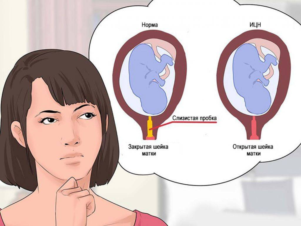 Двурогая матка и беременность