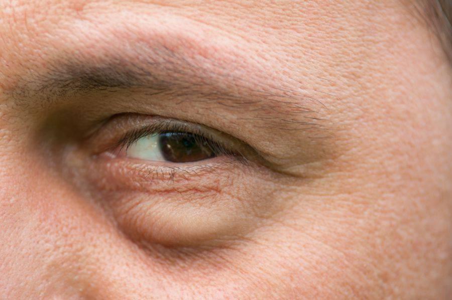 Что делать при отеках лица? | компетентно о здоровье на ilive