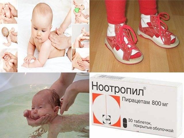 Хождение на носочках – что делать, если ребенок ходит на цыпочках