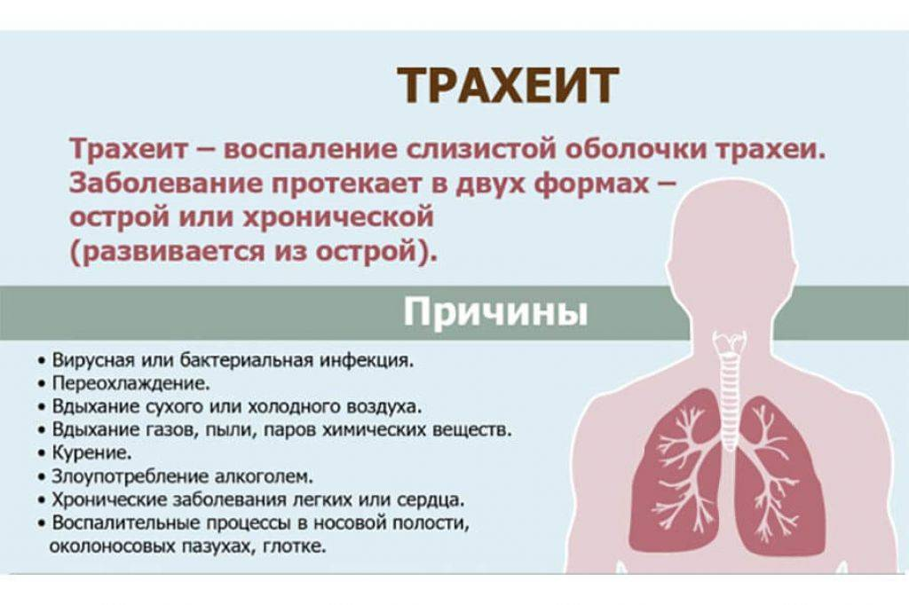 Антибиотики при трахеите: когда без них не обойтись и когда они не нужны? : инструкция по применению | компетентно о здоровье на ilive