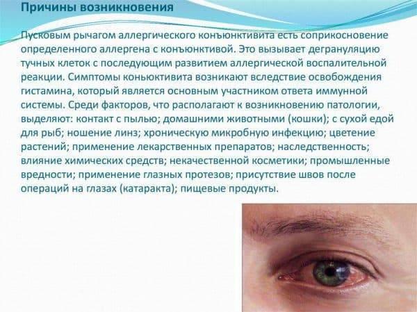 Способы терапии при аллергическом конъюнктивите