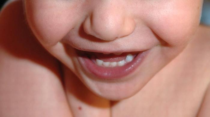 Острая дыхательная недостаточность у детей