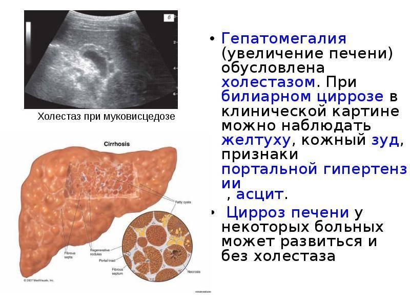 Увеличение печени. симптомы и лечение гепатомегалии печени.