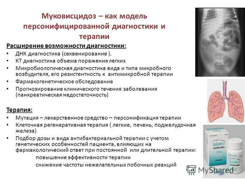 Диагностика, симптомы и лечение муковисцидоза у детей разного возраста