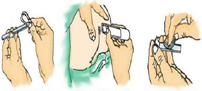Взятие соскоба с кожи и ногтей на грибок