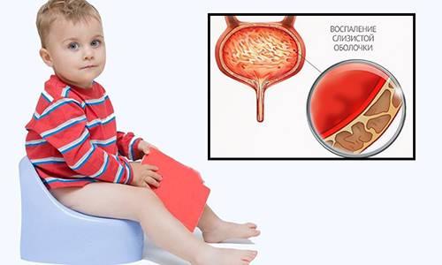 Кровь в моче (гематурия) у детей и подростков: причины, симптомы, диагностика и лечение, особенности у девочек и девушек, мальчиков и парней