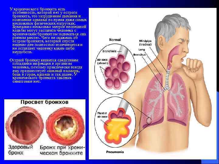Рецидивирующий обструктивный бронхит | eurolab | пульмонология