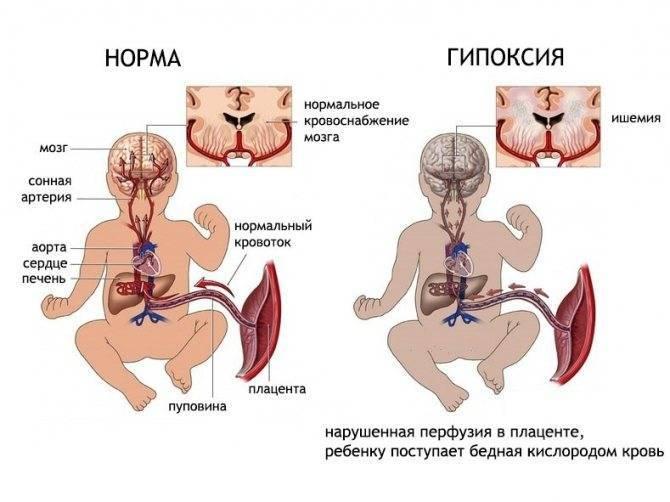Гипоксия плода при беременности: причины, симптомы и лечение