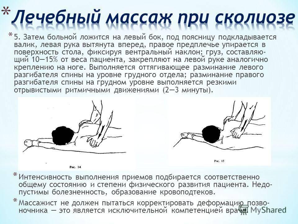 Помогает ли плавание при сколиозе: как правильно плавать, упражнения