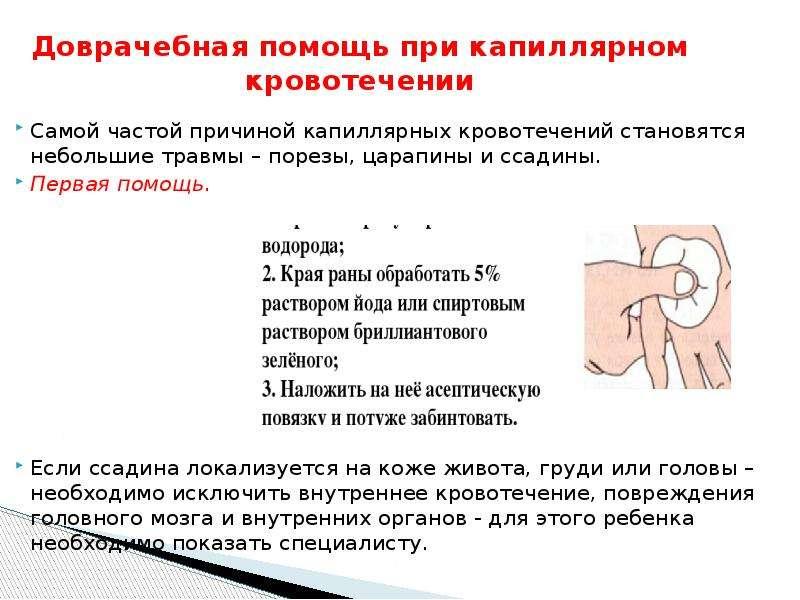 Конспект занятия для детей 7–11 лет «оказание первой помощи при порезах, ссадинах, ожогах»