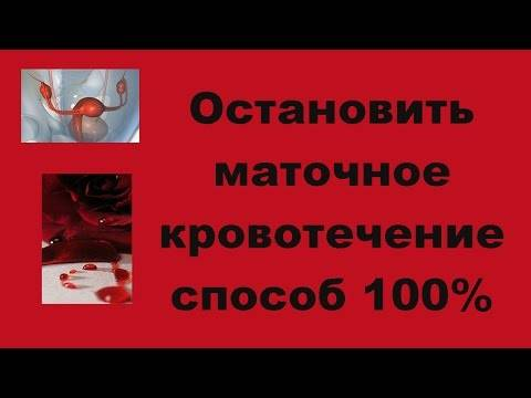 Кровопотеря — большая медицинская энциклопедия
