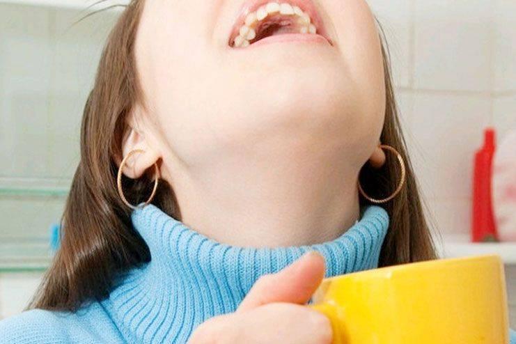 Что делать, если першит и сушит в горле? | мкдц фгбну нцн
