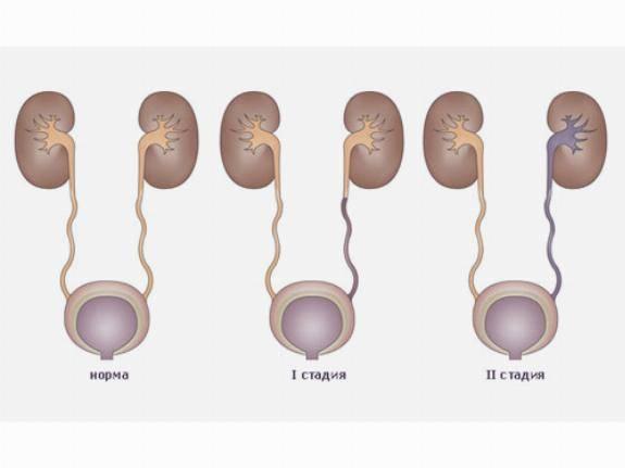 Пузырно-мочеточниковый рефлюкс. причины, симптоматика, диагностика и лечение пузырно-мочеточникового рефлюкса!