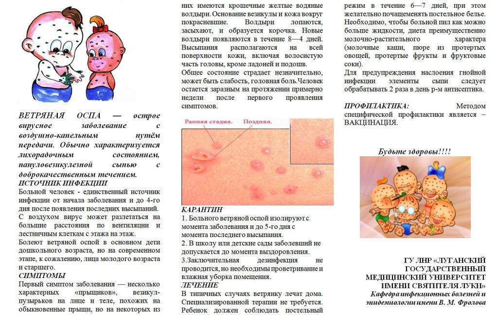 Кандидозный стоматит