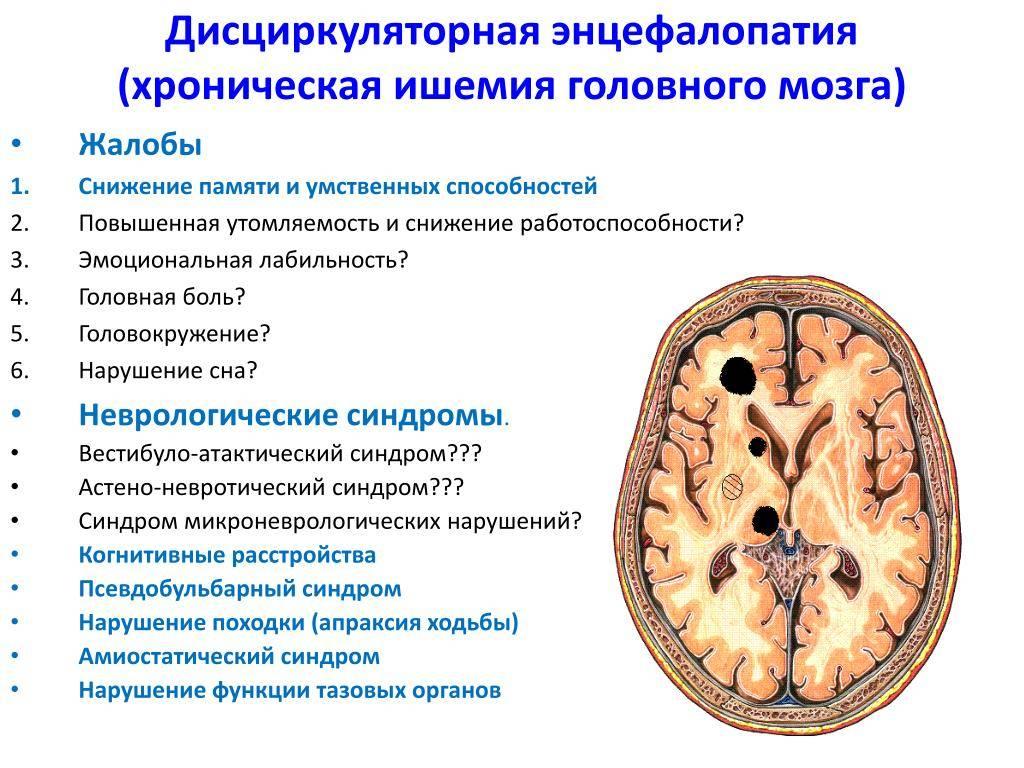 Дисциркуляторная энцефалопатия 1, 2, 3 степени: лечение, симптомы, причины