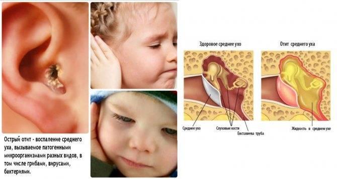 Гнойный отит | виды, причины, лечение и симптомы