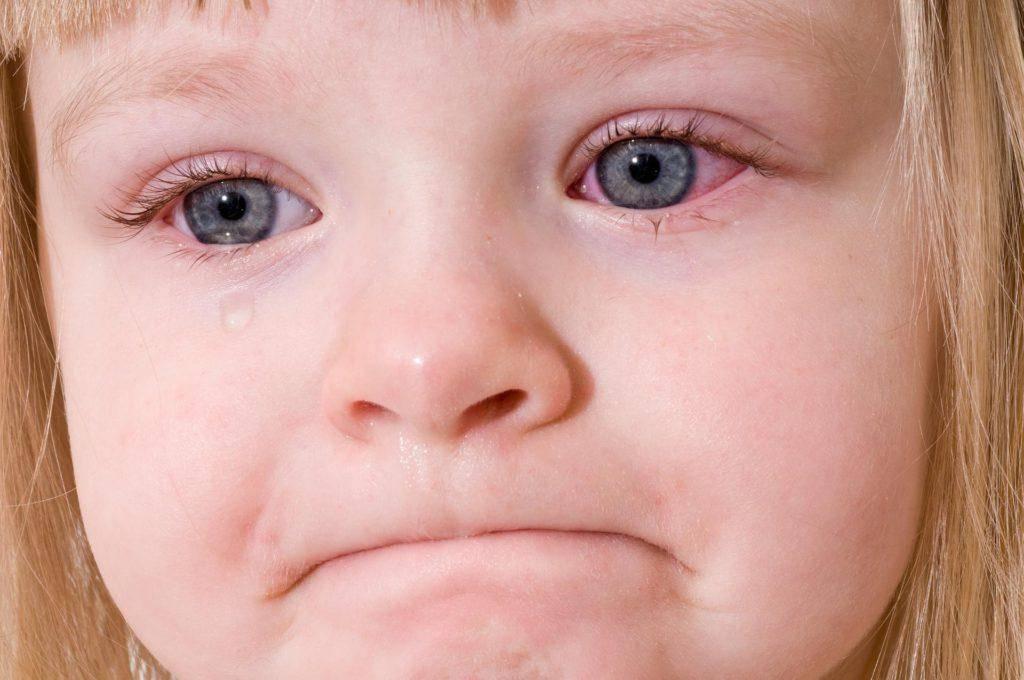 Отек лица - все причины и заболевания | университетская клиника