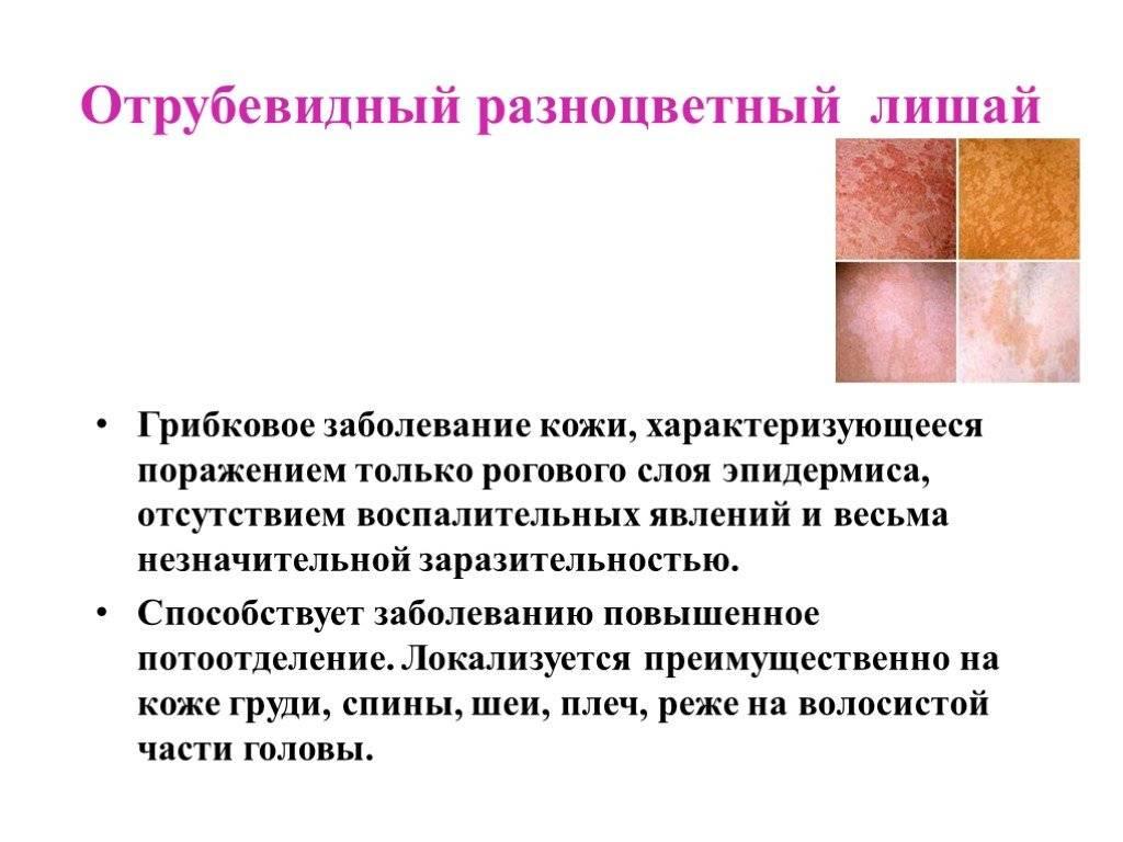 Детские инфекционные болезни: общие сведения – напоправку – напоправку