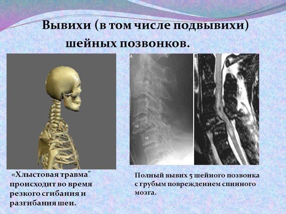 Заболевания опорно-двигательной системы у детей