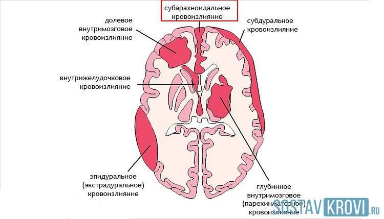 Кровоизлияние в мозг при родовой травме - симптомы болезни, профилактика и лечение кровоизлияния в мозг при родовой травме, причины заболевания и его диагностика на eurolab