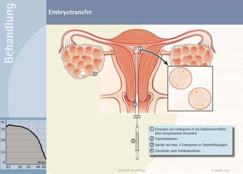 Как повысить шансы на имплантацию при эко
