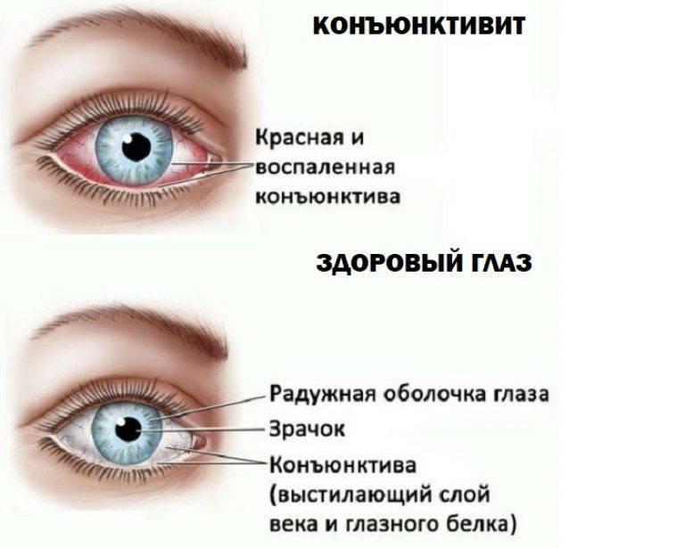 У ребенка красные глаза: причины и лечение, сопутствующие симптомы - гной, аллергия