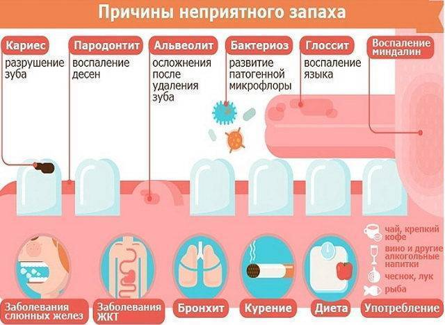 Запах ацетона изо рта у ребенка и взрослого: причины и лечение заболеваний, если изо рта пахнет ацетоном – yod.ua