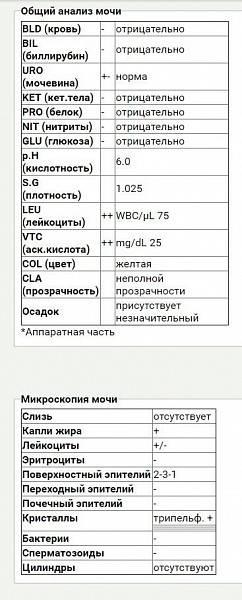 Общий анализ мочи – расшифровка показателей оам   клиника лоритом