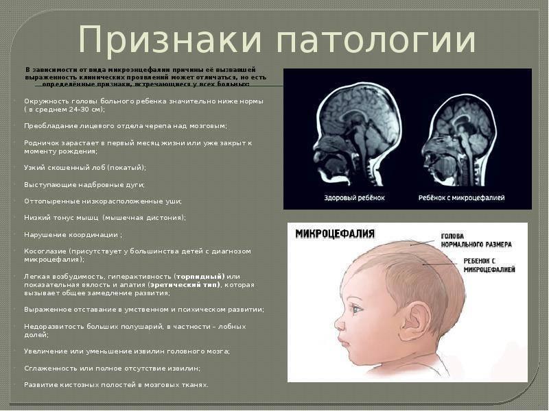Наиболее частое нарушение развития цнс ребенка