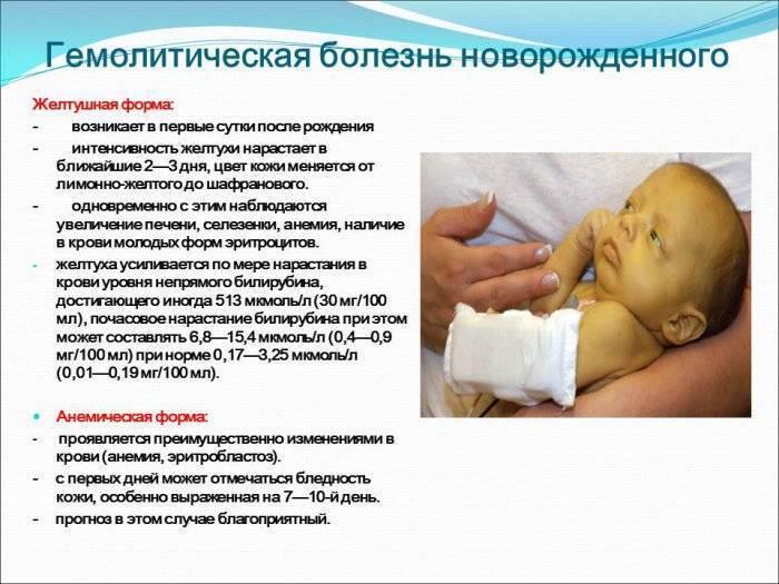 Гемолитическая болезнь новорожденного: признаки, лечение — онлайн-диагностика