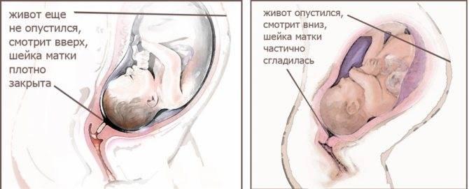 Опустился живот при беременности