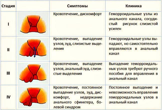Проктит: причины, симптомы, методы диагностики и лечения проктита