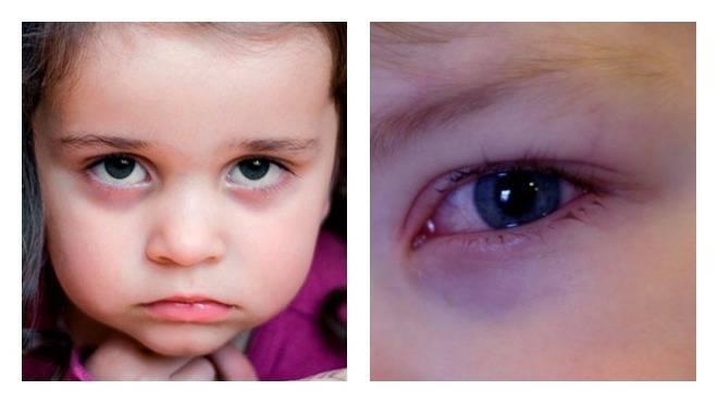 Темные круги под глазами, синяки под глазами.