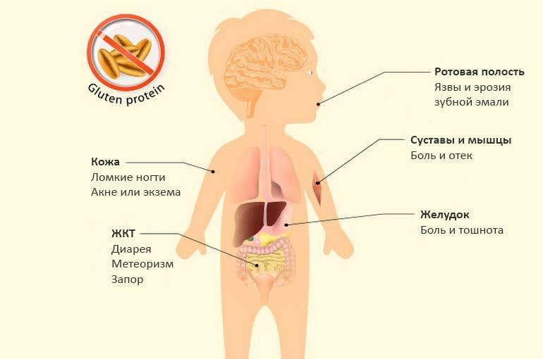 Целиакия / заболевания / клиника эксперт
