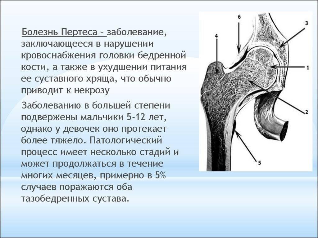 Остеохондропатия — большая медицинская энциклопедия