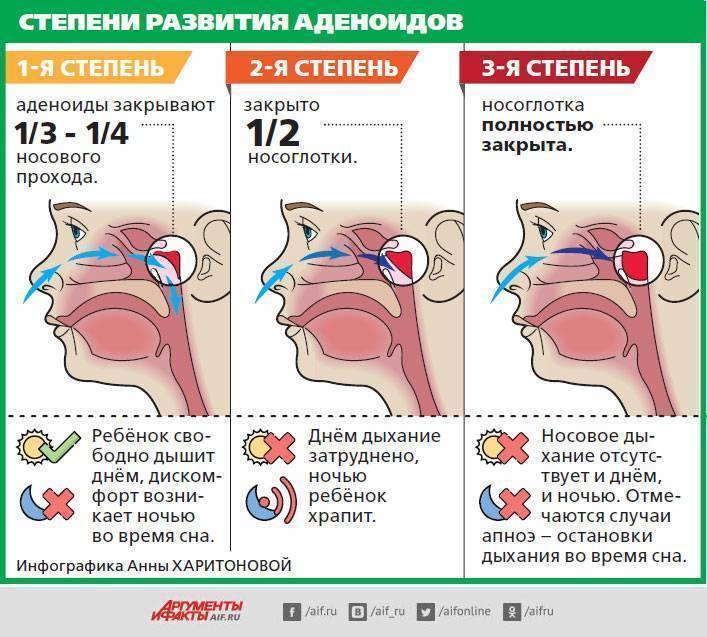 Синусит – воспаление носовых пазух. причины, симптомы, методы диагностики и лечения синусита