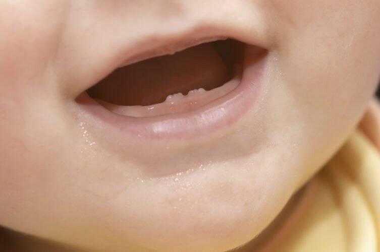 В каком возрасте режутся первые зубы. во сколько месяцев обычно режутся зубки у мальчиков