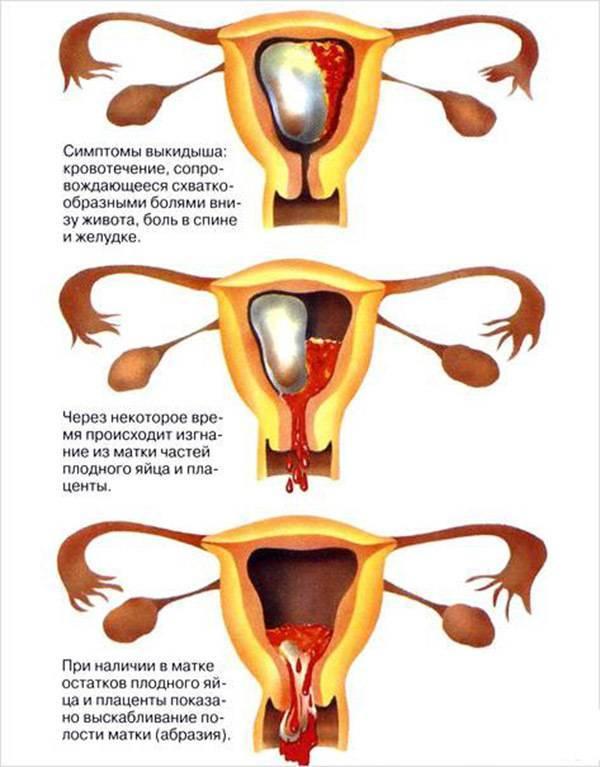 Жжение при мочеиспускании и рези во влагалище при беременности